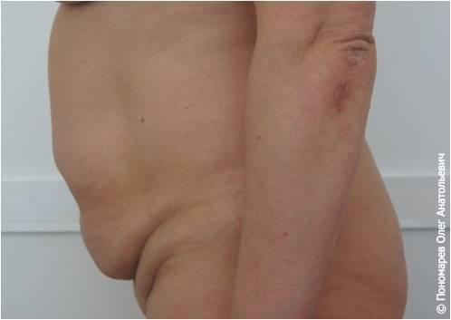 Абдоминопластика Абдоминопластика до операции