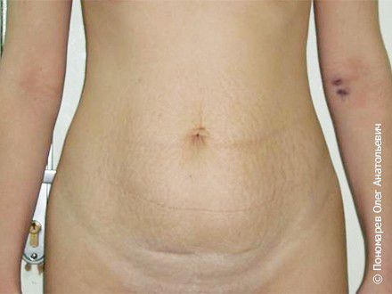 Абдоминопластика Пластика передней брюшной стенки (абдоминопластика) до операции