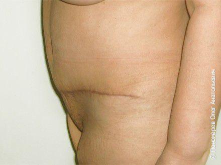 Абдоминопластика Пластика передней брюшной стенки (абдоминопластика) после операции