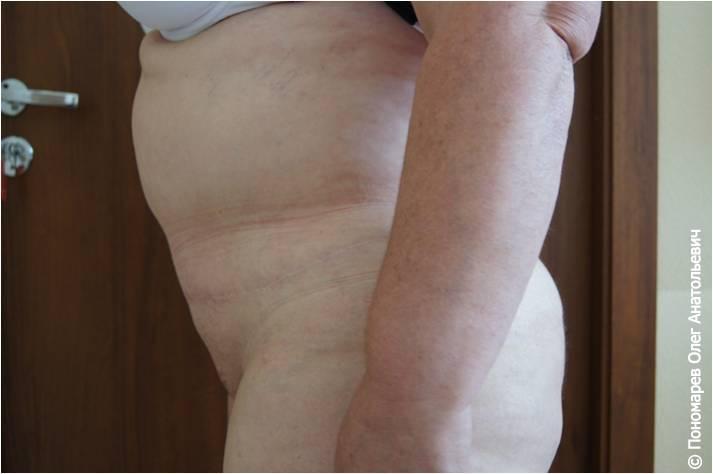 Абдоминопластика Абдоминопластика после операции