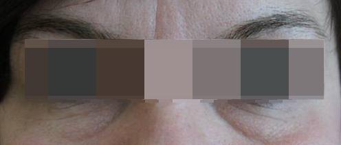 Блефаропластика Блефаропластика нижних век (трансконьюктивальная). Лазерная шлифовка нижних век до операции