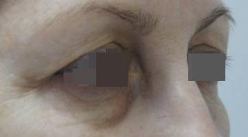 Блефаропластика Блефаропластика верхних век. Блефаропластика нижних век (трансконьюктивальная) до операции