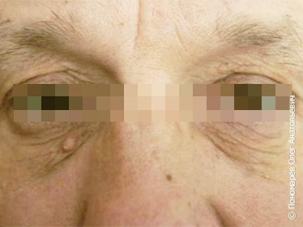 Блефаропластика Верхняя и нижняя блефаропластика. Лазерная шлифовка верхних и нижних век до операции