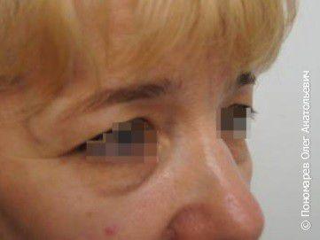 Блефаропластика Блефаропластика нижних век до операции