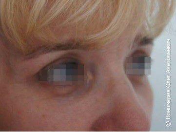 Блефаропластика Блефаропластика нижних век после операции