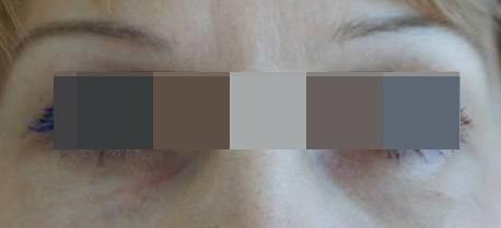 Блефаропластика Блефаропластика нижних век (трансконьюктивальная) после операции