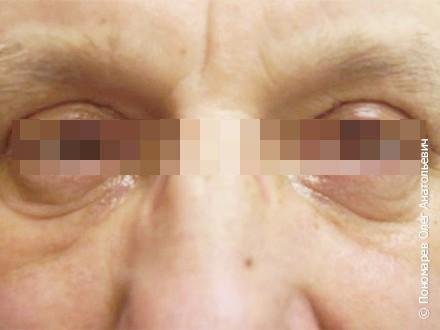 Блефаропластика Верхняя и нижняя блефаропластика. Лазерная шлифовка верхних и нижних век после операции