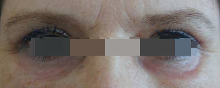 Блефаропластика Блефаропластика верхних век. Блефаропластика нижних век (трансконьюктивальная). Лазерная шлифовка нижних после операции