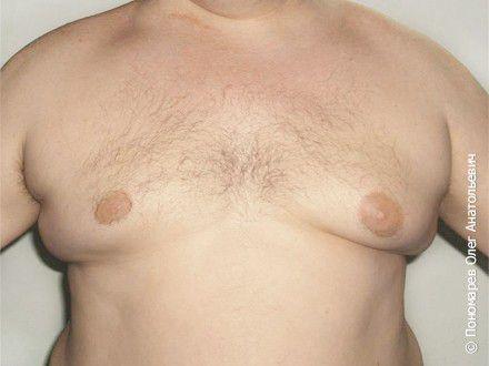 Гинекомастия Ложная гинекомастия. Липосакция грудной клетки до операции