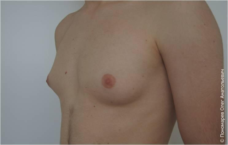 До лечение гинекомастии