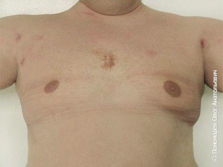 Гинекомастия Ложная гинекомастия. Липосакция грудной клетки после операции