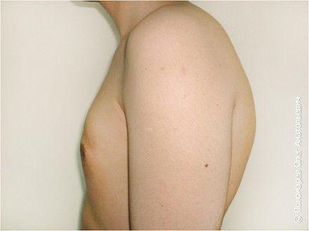 Гинекомастия Истинная гинекомастия. Подкожная мастектомия после операции