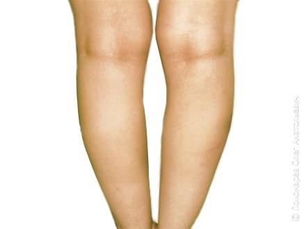 Круропластика Увеличение голеней асимметричными имплантатами  V=140 см3 до операции