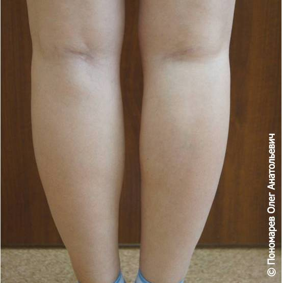 Круропластика Круропластика после операции
