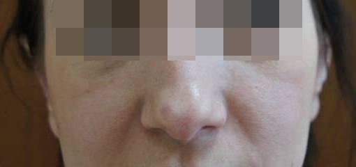 Отопластика Отопластика с двух сторон после операции