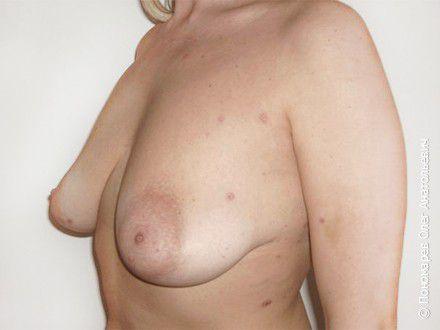 Подтяжка груди Птоз молочных желёз. Подтяжка и увеличение анатомическими имплантами V=325 см3 до операции
