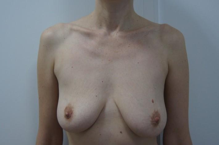 До операции по подтяжке груди