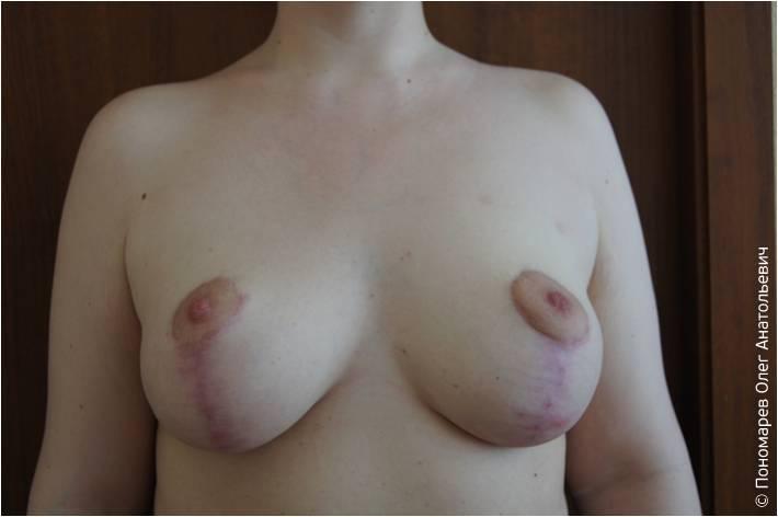 После операции