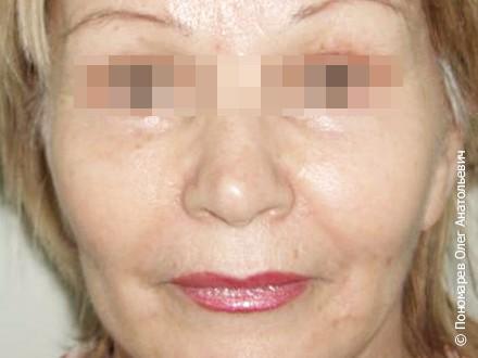 Подтяжка лица и шеи Эндоскопическая подтяжка верхней и средней зон лица. Фейс-лифтинг нижних 2/3 лица, smas-подтяжка, пластика шеи. Верхняя и нижняя  блефароплатиска после операции