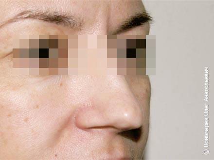 Ринопластика Коррекция кончика носа до операции
