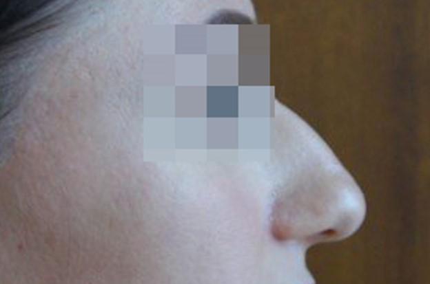 Ринопластика Закрытая ринопластика до операции