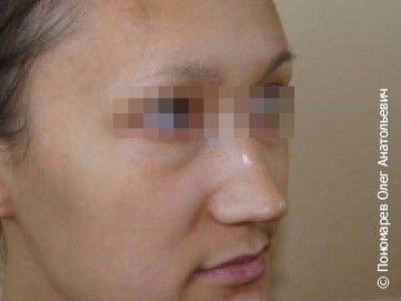 Ринопластика Ринопластика, коррекция кончика носа до операции