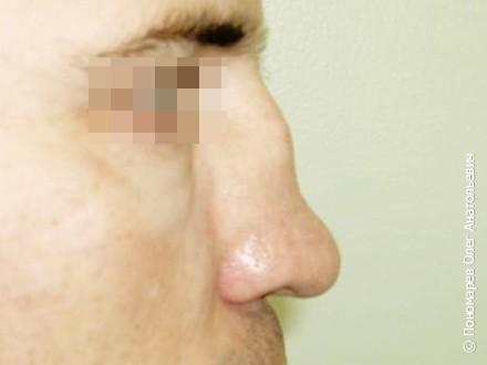 Ринопластика Ринопластика + замещение дефекта носа рёберным хрящём до операции