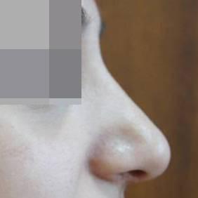 Ринопластика Ринопластика после операции