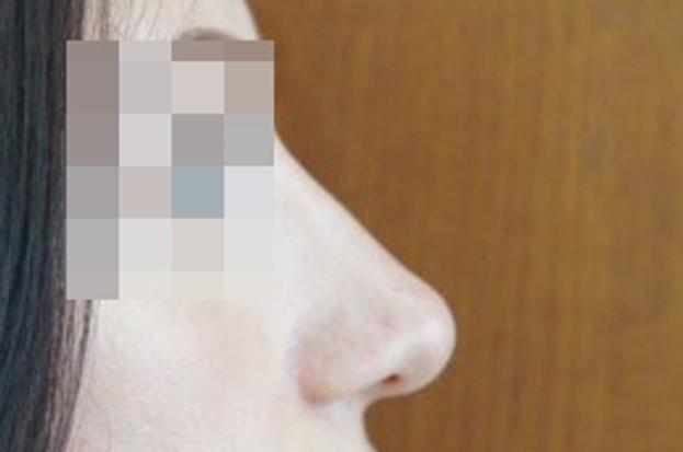 Ринопластика Закрытая ринопластика после операции