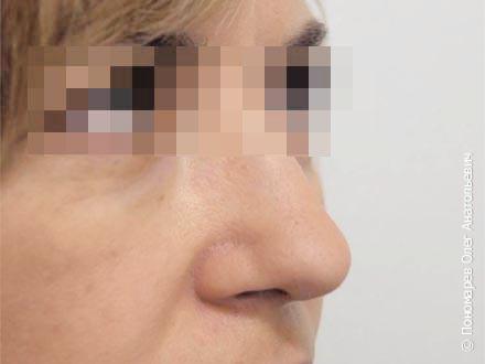 Ринопластика Коррекция кончика носа после операции