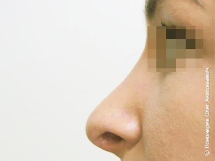 Ринопластика Повторная ринопластика после операции