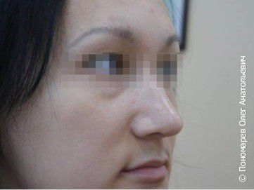 Ринопластика Ринопластика, коррекция кончика носа после операции