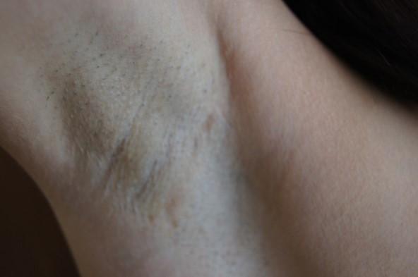 Рубец через 1 год после операции
