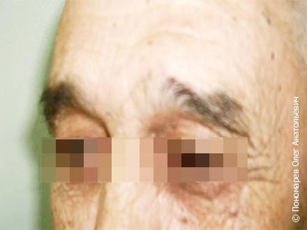 Удаление новообразований Липома лба. Удаление липомы лба после операции
