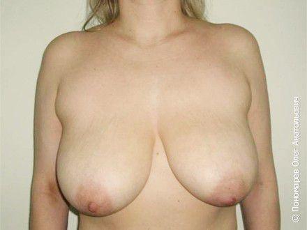 Уменьшение груди Уменьшение груди. Резекция (удаление) 500 г молочной железы справа, 420 слева. до операции