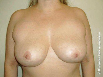 Уменьшение груди Уменьшение груди. Резекция (удаление) 500 г молочной железы справа, 420 слева. после операции
