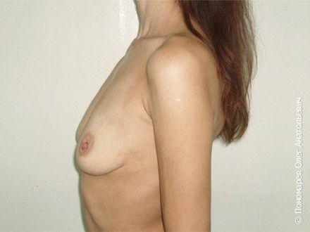 Увеличение груди Субареолярное увеличение груди анатомическими имплантами V=300 см3 до операции