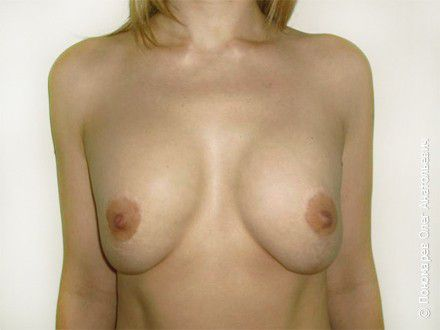 Увеличение груди 3 операции на молочных железах в анамнезе. Репротезирование молочных желёз до операции
