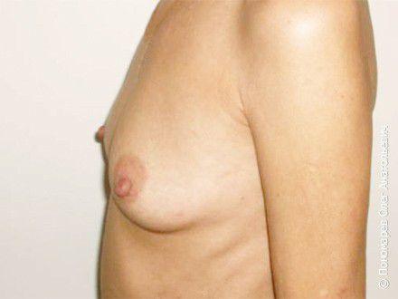 Увеличение груди Трансаксилярное увеличение груди анатомическими имплантами V=295 см3 до операции
