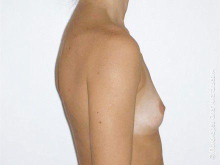 Увеличение груди Трансаксилярное увеличение груди анатомическими имплантами V=250 см3 до операции