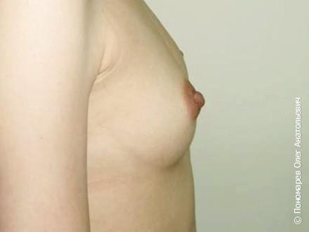 Увеличение груди Подмышечное увеличение молочных желёз. Анатомические импланты V=250 см3 до операции