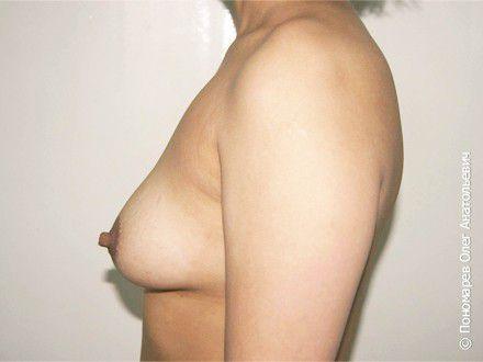 Увеличение груди Асимметрия молочных желёз, птоз. Увеличение трансаксилярным (подмышечным) доступом. Анатомические импаланты V=295 см3, 330 см3 до операции