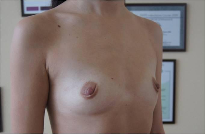 Увеличение груди Увеличение молочных желёз анатомическими имплантами V=290 см3 до операции