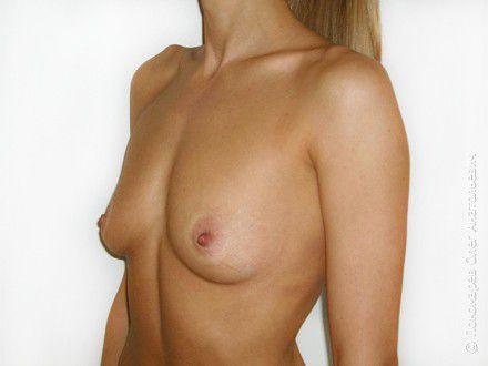 Увеличение груди Увеличение груди анатомическими имплантами V=250 см3 до операции