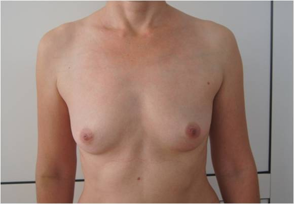 Увеличение груди Увеличение груди круглыми имплантами, V=220 см3 до операции