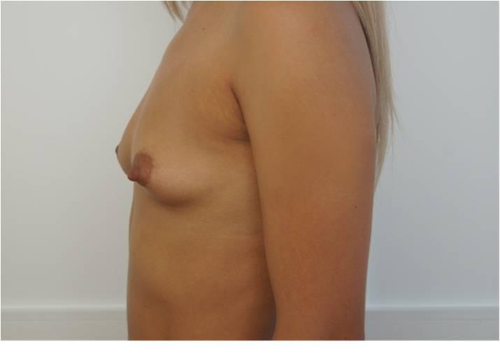 Увеличение груди Увеличение молочных желёз анатомическими имплантами V=260 см3, 280 см3 до операции
