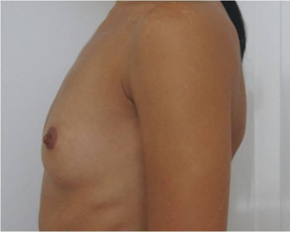 До операции по увеличению груди