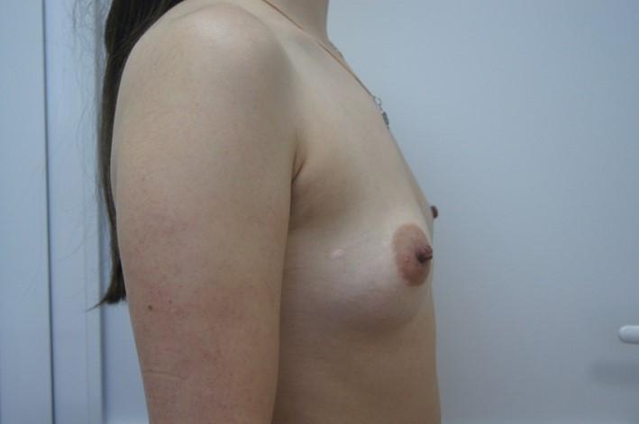 Увеличение груди Увеличение груди до операции