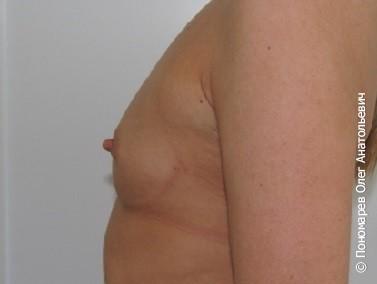 Увеличение груди Трансаксилярное увеличение молочных желёз анатомическими имплантами V=290 см3 до операции