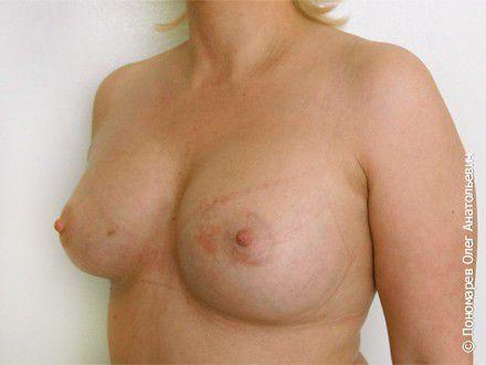 Увеличение груди Увеличение груди после операции